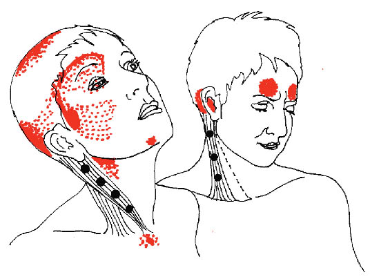 Trigger Points Map
